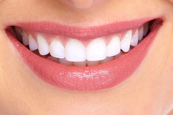 sonrisa perfecta con ortodoncia