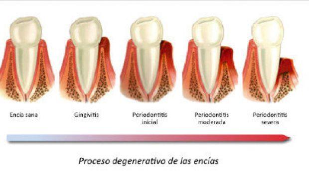 progreso enfermedades periodontales